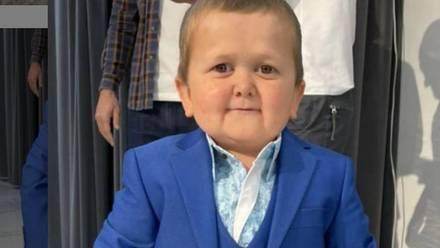 Hasbullah Magomedov padece una enfermedad llamada acondroplasia