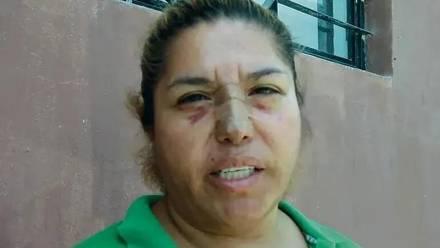 Juana Falcón presenta su denuncia ante la Fiscalía del Estado de Jalisco, luego de que fuera víctima de una golpiza por parte de una mujer que es la coordinadora de la distribución de agua en la colonia Agua Fría, de Zapopan, Jalisco.