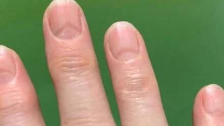 Marcas del Covid-19 en uñas